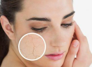 Cách trị da mặt khô vào mùa đông an toàn hiệu quả nhất